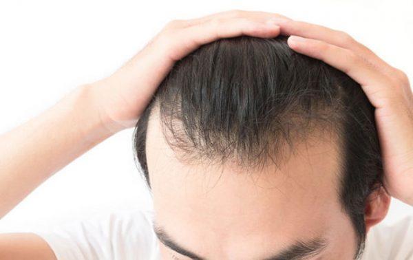 Hói đầu có chữa được không