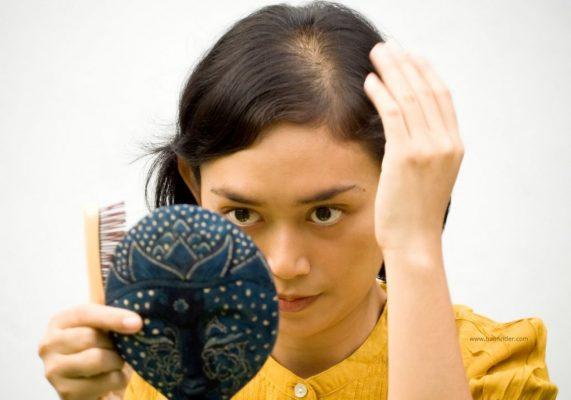 Rụng tóc ở nữ giới