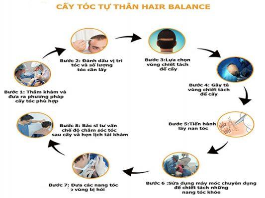 Cấy tóc cho người trán cao
