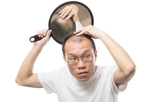 Cách chữa trị hói đầu ở nam giới