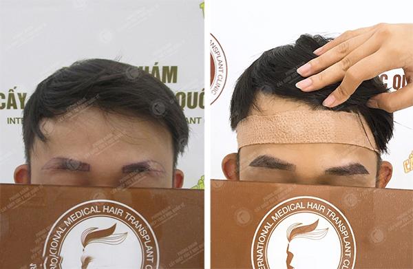 Cấy lông mày cho nam