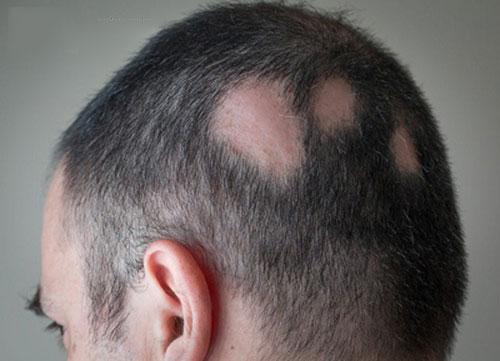 Cấy tóc trên sẹo