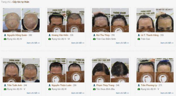 Cấy tóc tự thân có hiệu quả không