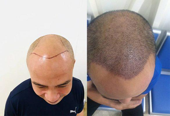 Bị hói đầu phải làm sao